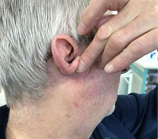 Seborrhoeic Keratosis Removal After Glasgow