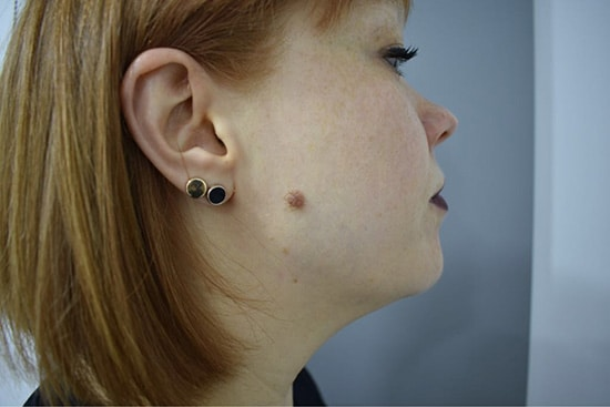 Facial Mole Removal Before Glasgow