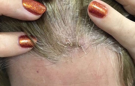 Pilar Cyst Removal After Glasgow
